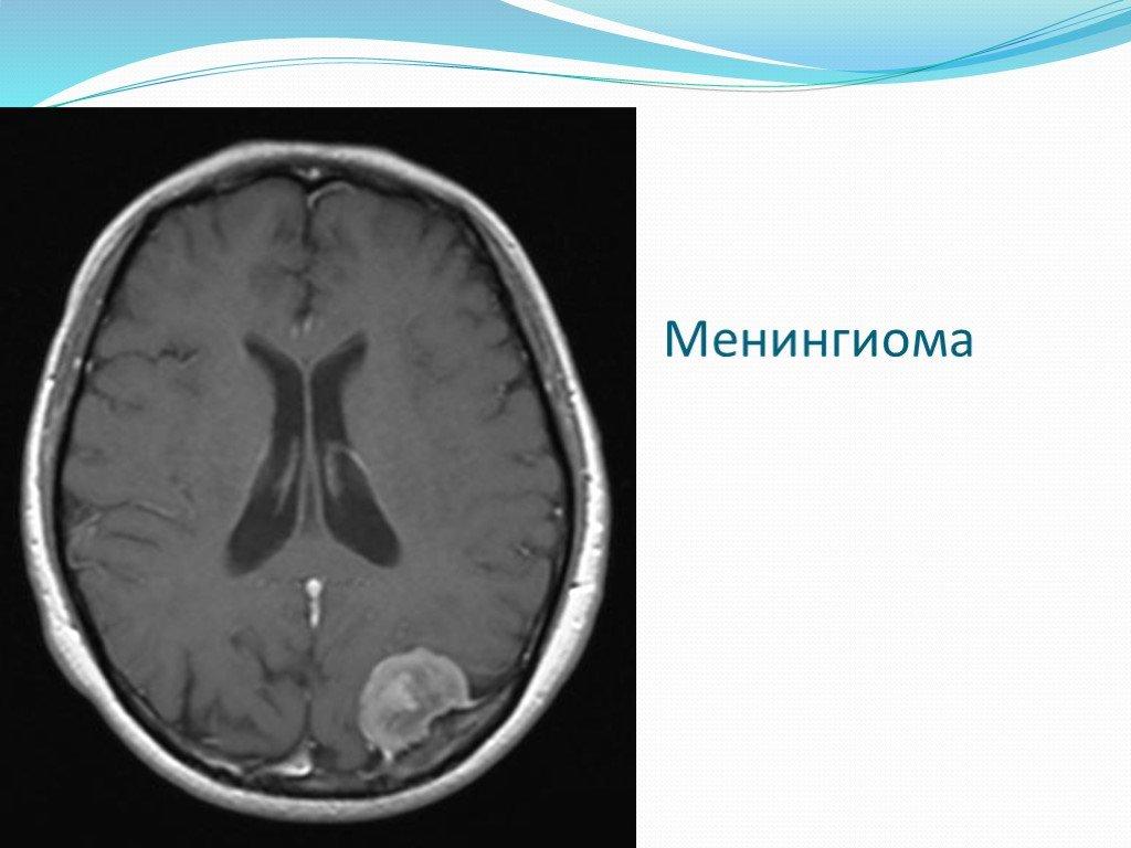 Что такое менингиома головного мозга, возможно ли лечение без операции, методы удаления опухоли, прогноз выживаемости