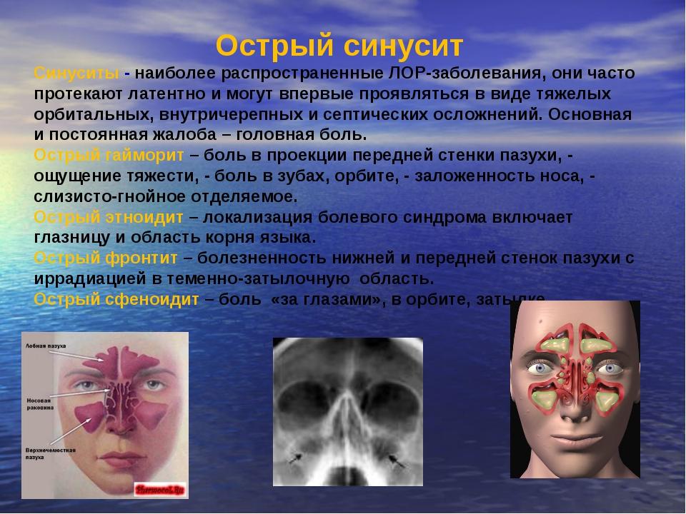 Синусит: основные симптомы и способы лечения