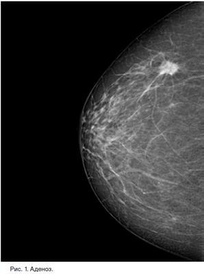 Маммография молочных желез: как и когда делают, виды маммографии груди