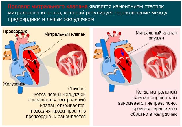 Пролапс митрального клапана (пмк): что это такое, чем опасен, степени, симптомы и лечение