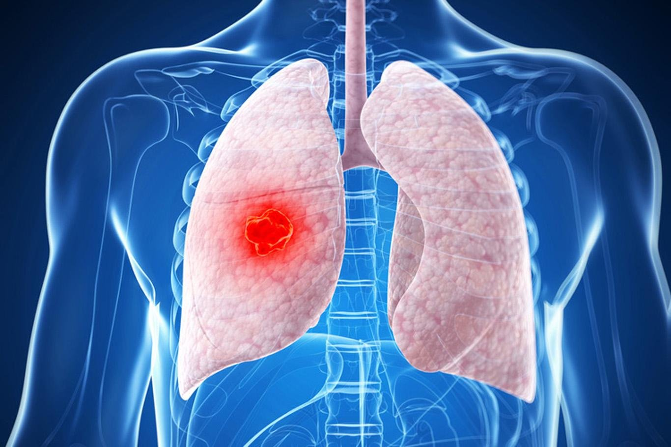 Внебольничная пневмония: характерные симптомы и лечение