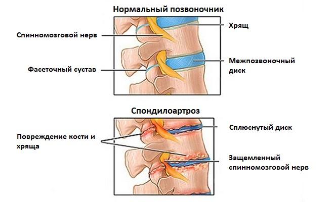 Спондилоартроз шейного отдела как лечить | спина доктор