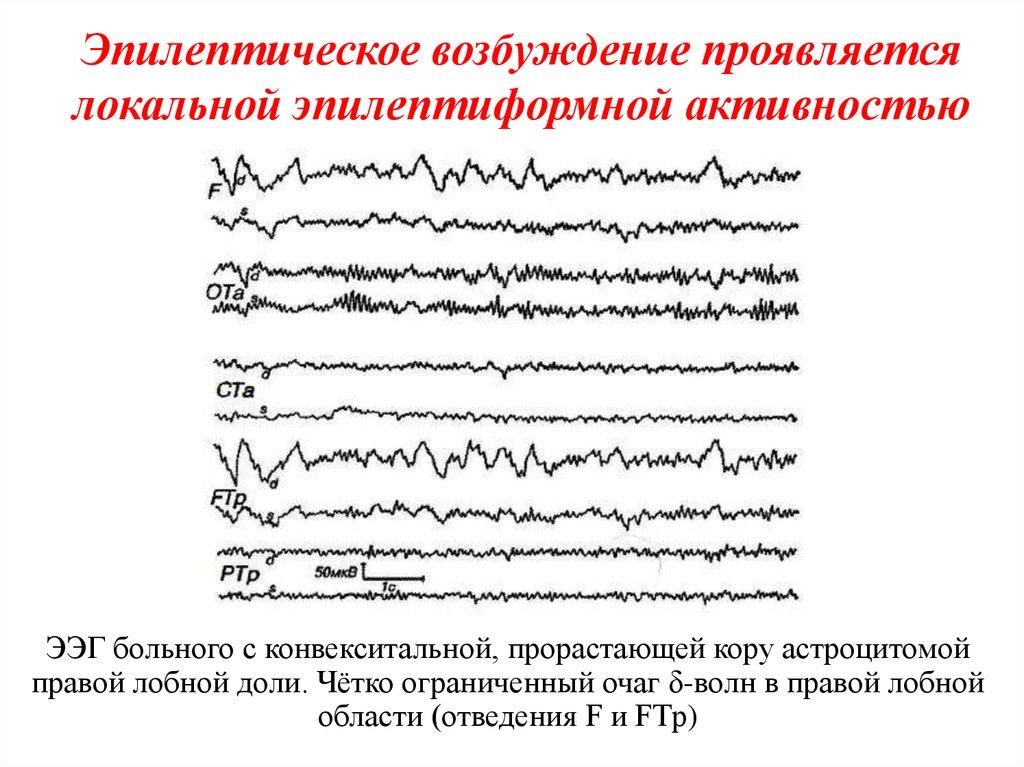 Электроэнцефалография головного мозга: методика проведения | компетентно о здоровье на ilive