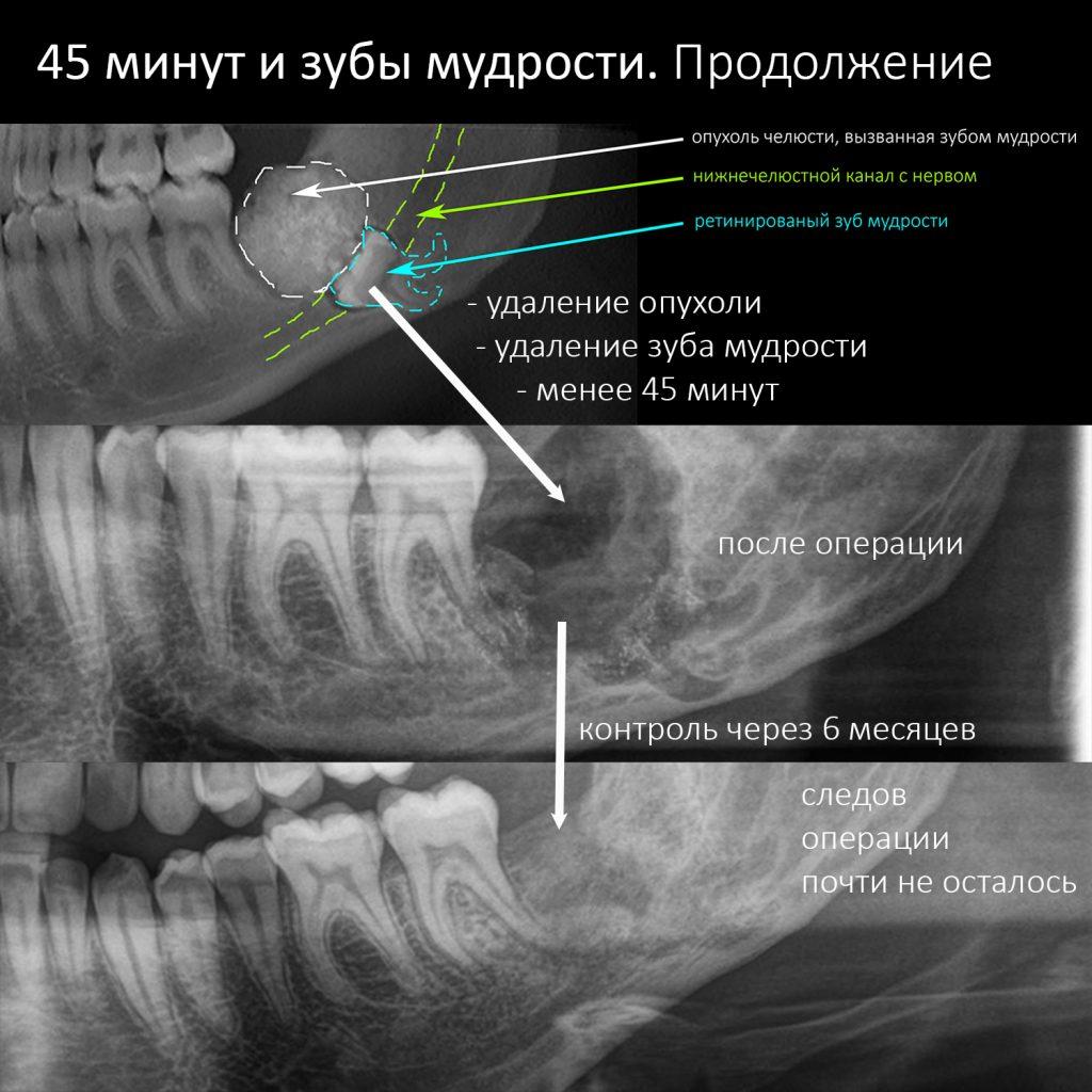 Удаление ретинированного зуба мудрости: дистопированные третьи моляры на нижней и верхней челюсти