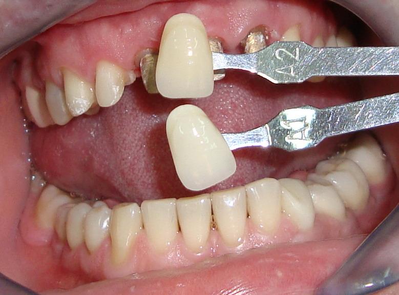 Какие бывают коронки на зубы, обзор цен