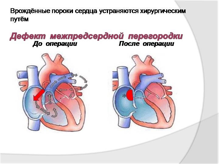 Приобретенный порок сердца что это такое - здоров.сердцем