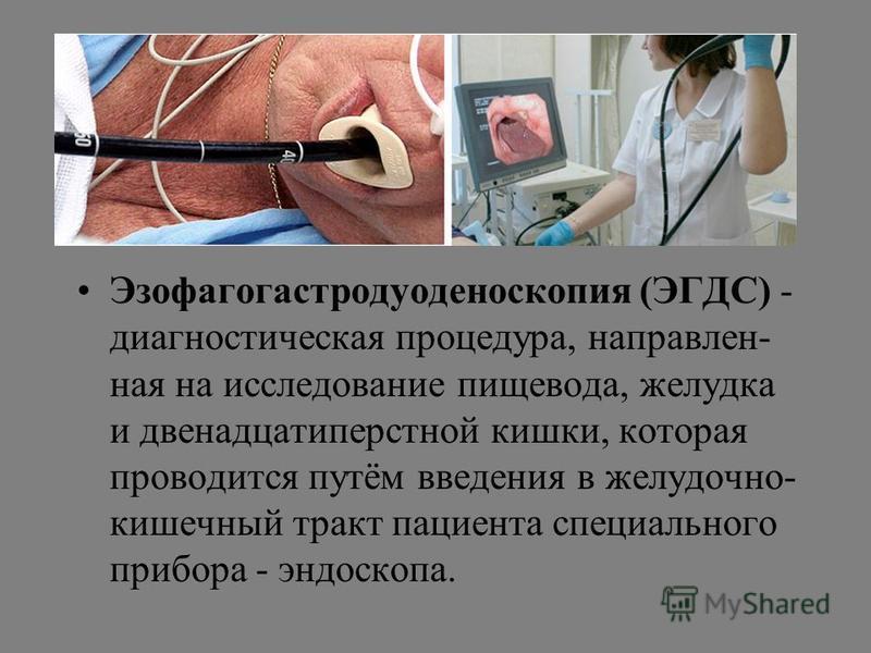 Эзофагогастродуоденоскопия: что это такое