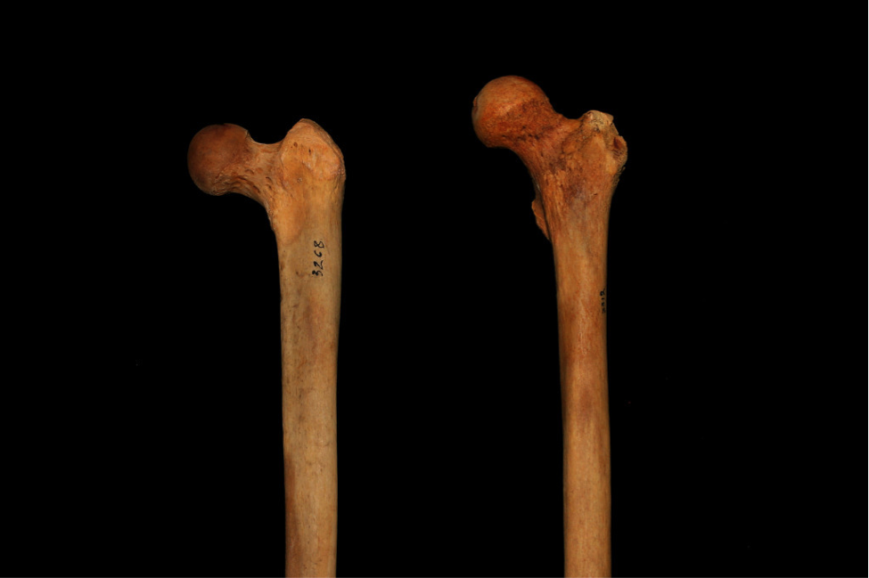 Кости (игра) — википедия. что такое кости (игра)