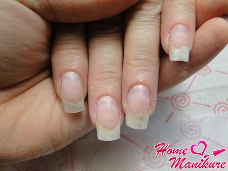 5 отличий онихолизиса ногтей от грибковой инфекции