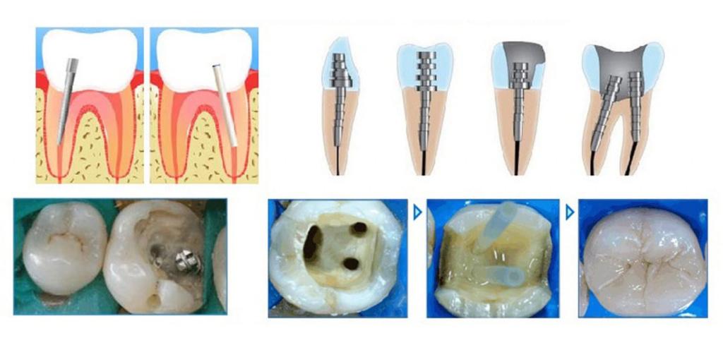Процедура и цена установки штифта для зубов, когда использование штифта необходимо, каковы противопоказания к процедуре