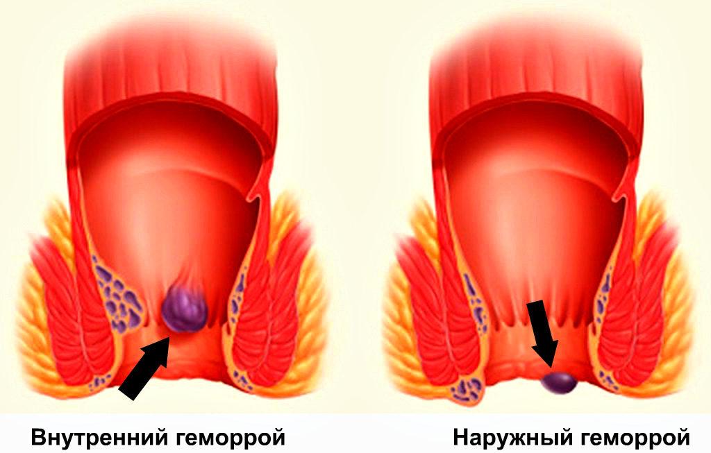 Лечение внутреннего геморроя: симптомы и причины болезни