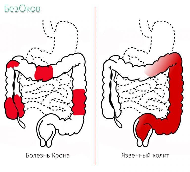 Колит кишечника: симптомы и лечение у взрослых медикаментами и народными средствами