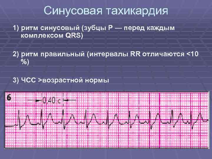 Синусовая тахикардия сердца что это такое