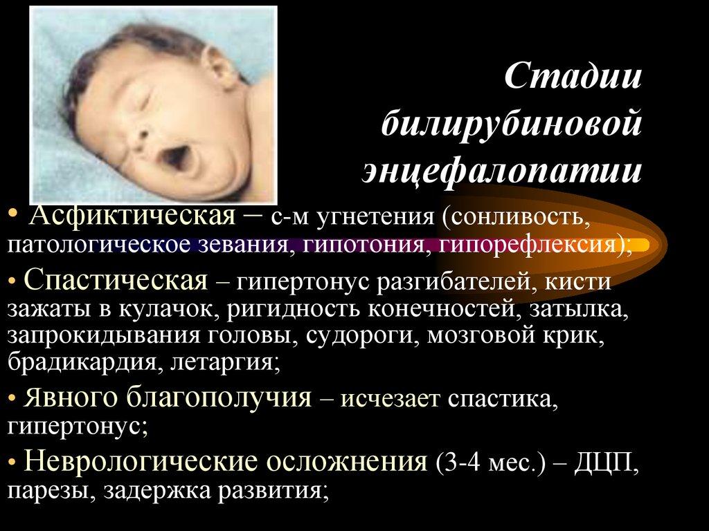 Резидуальная энцефалопатия у детей: симптомы и лечение