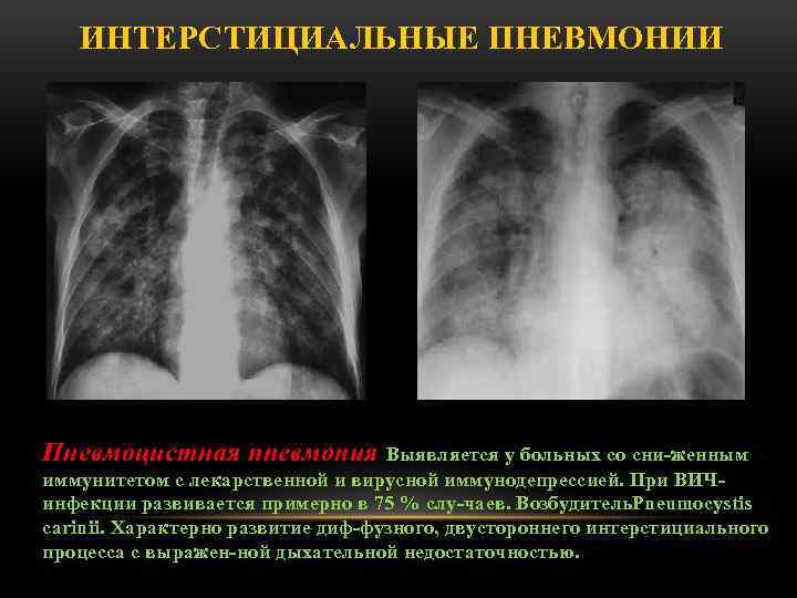 Полисегментарная пневмония: этиология, симптомы, диагностика, лечение, особенности