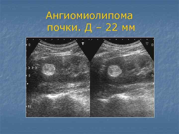 Ангиомиолипома почки: определение заболевания и его лечение, особенности болезни левой и правой почки, методы народной медицины