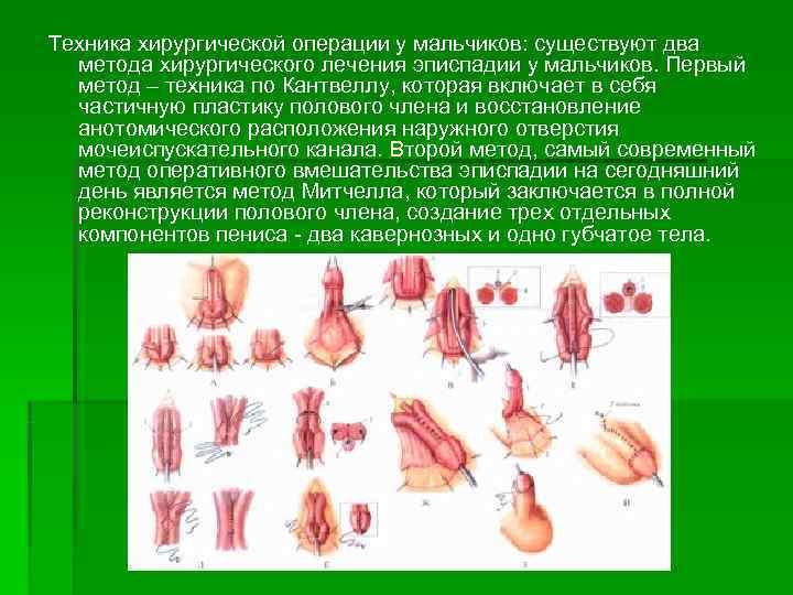 Гипоспадия: лечение, причины, симптомы, признаки, фото