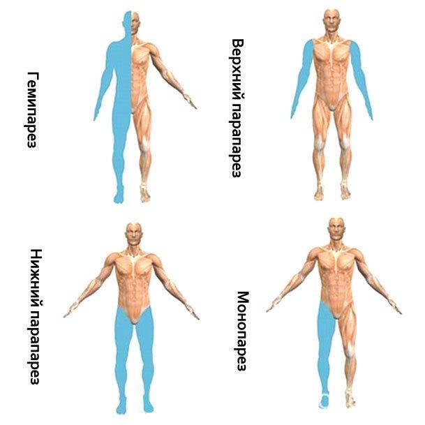 Правосторонний и левосторонний гемипарез - причины развития, симптомы и лечение