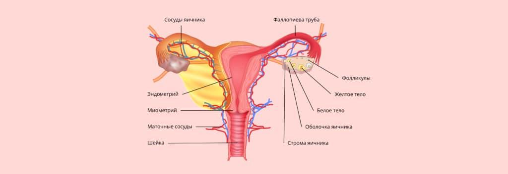 Воспаление маточных труб