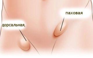 Паховая грыжа у мужчин: фото, симптомы и лечение без операции
