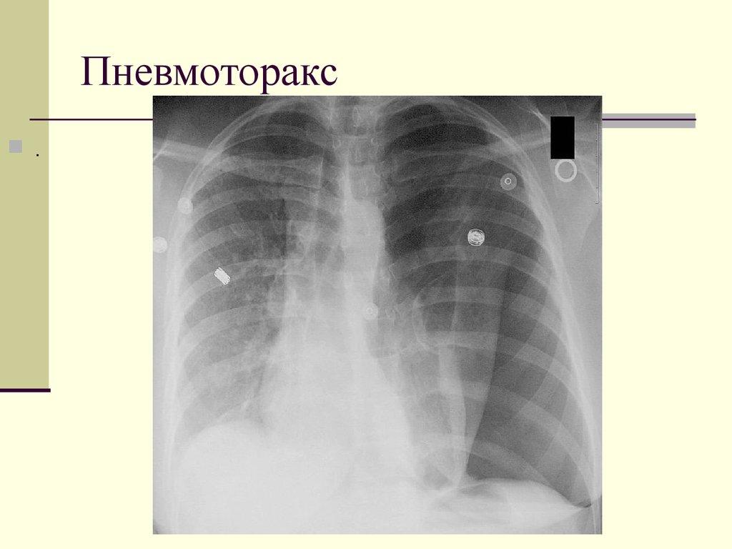 Пневмоторакс — википедия с видео // wiki 2