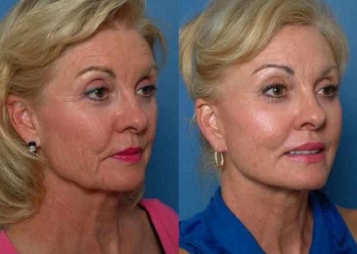 Как убрать брыли на лице: методы и процедуры в 50 лет и больше. косметология и упражнения в домашних условиях +видео