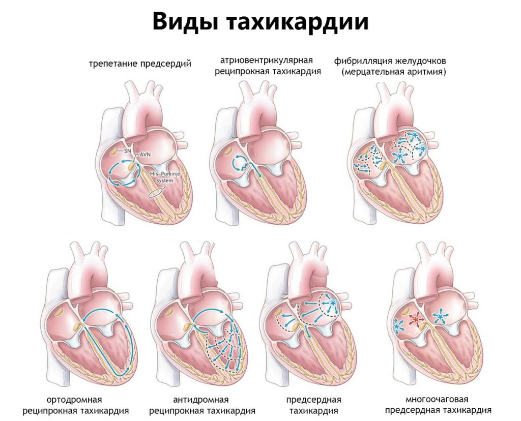 Тахикардия - лечение, симптомы, причины, приступ тахикардии