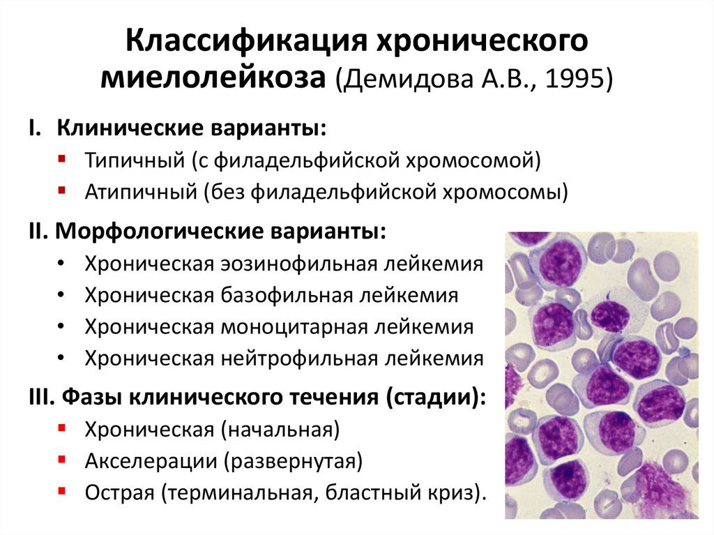Лейкоз - что за болезнь?