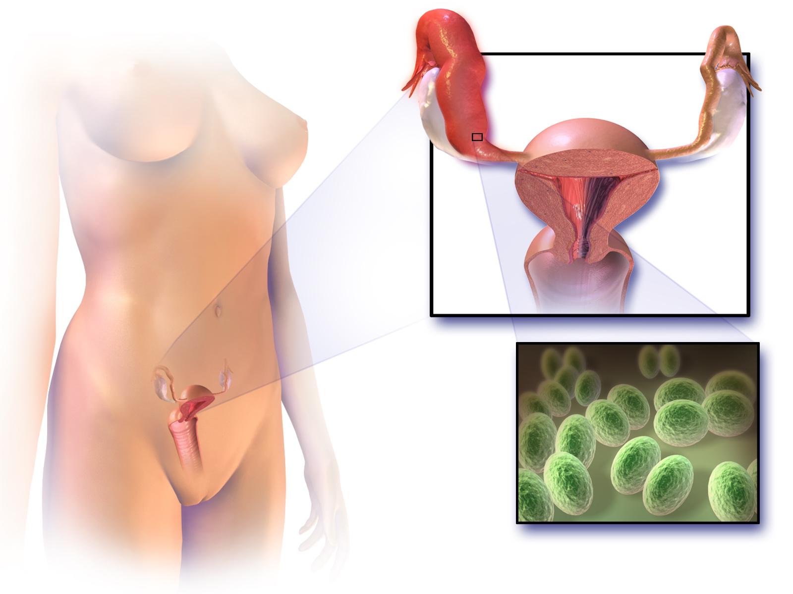 Синехии половых губ у девочек: как распознать и чем лечить