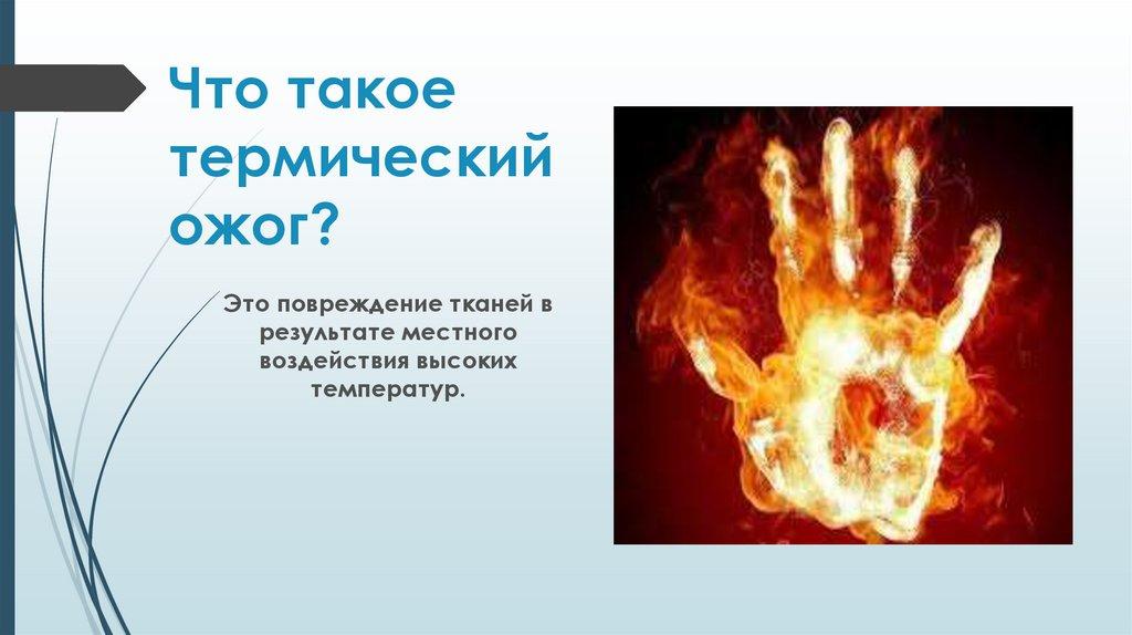Как лечить термический ожог?