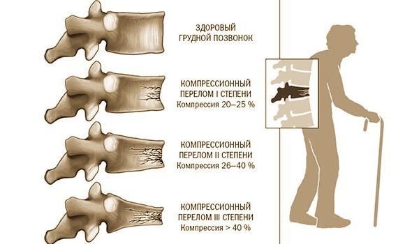 Компрессионный перелом позвоночника поясничного, грудного, шейного отдела – что это такое? первая помощь при переломе позвоночника