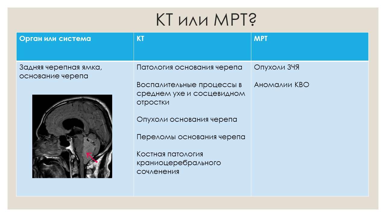 Как делается компьютерная томография