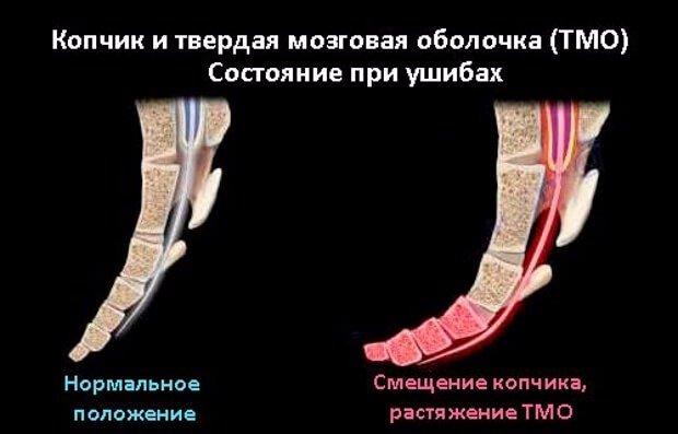 Строение копчика человека: где находится, анатомия копчика и крестца у женщин, что такое крестцово-копчиковое сочленение