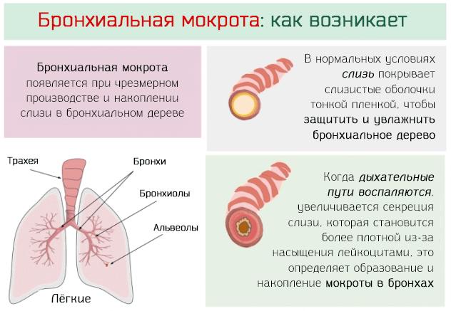 Как образуется мокрота при кашле