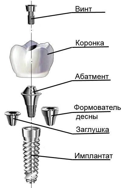 Абатмент: установка титановых, циркониевых, керамических и альфа био абатментов при имплантации   rvdku.ru
