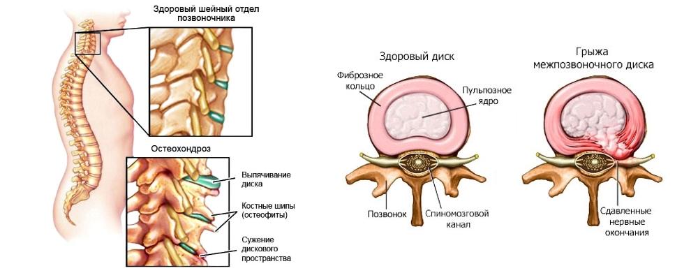 Шейный остеохондроз цервикалгия. хроническая вертеброгенная цервикалгия - врач-информ