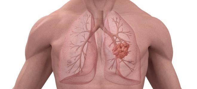 Пневмосклероз легких - что это такое? симптомы, диагностика, лечение - всё о склерозе
