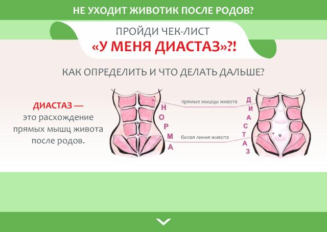 Диастаз после родов: как определить, устранить, профилактика