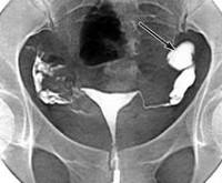 Непроходимость маточных труб