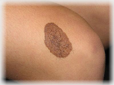Невусы: основные виды, принципы диагностики, профилактика меланомы