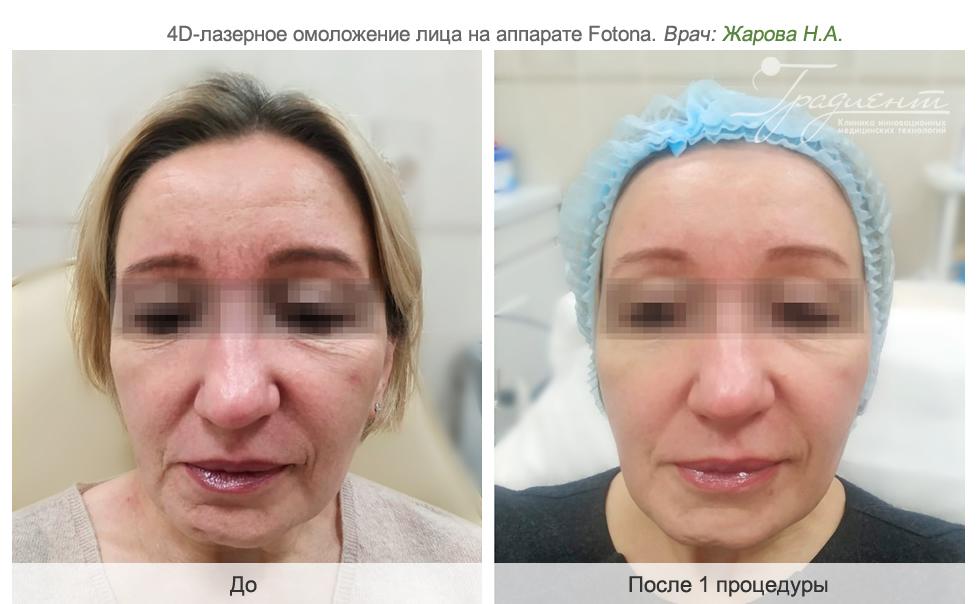 Лазерное омоложение кожи лица: методики и ее виды, показания, отзывы косметологов и пациентов