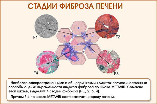 Фиброз печени 2 степени: лечение и прогноз при гепатите с и других болезнях
