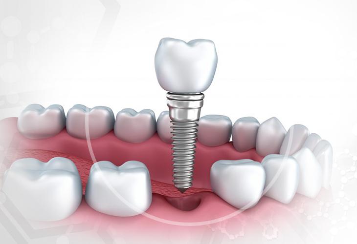 Протезирование передних зубов (верхних и нижних) - виды, цены и фото