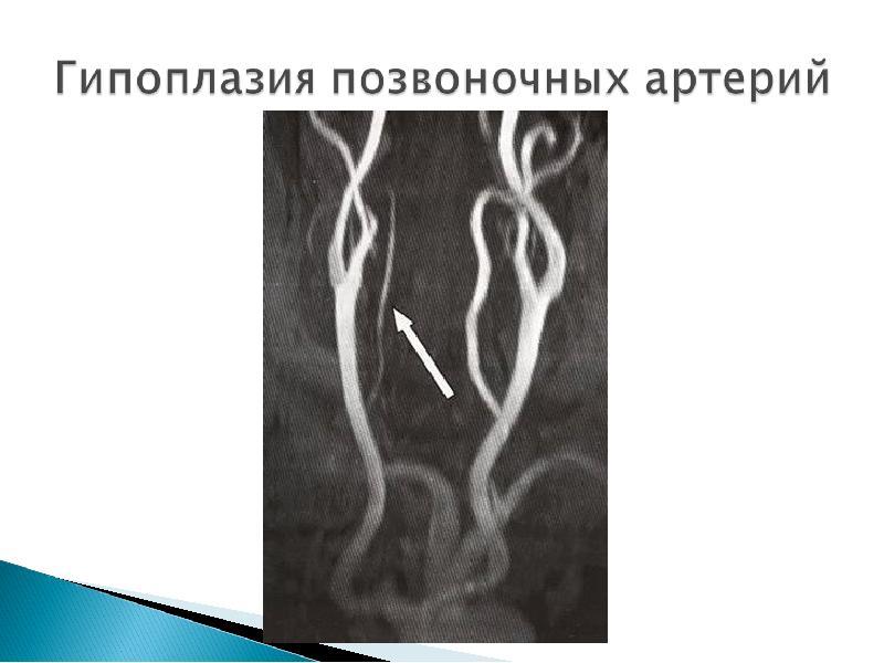 Гипоплазия правой позвоночной артерии: симптомы и стадии, медикаментозное и оперативное лечение, прогноз жизни