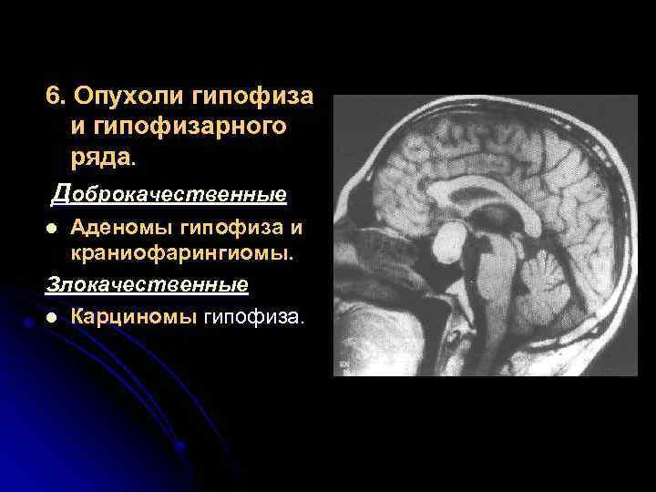 Аденома гипофиза головного мозга: симптомы, лечение, последствия, операция