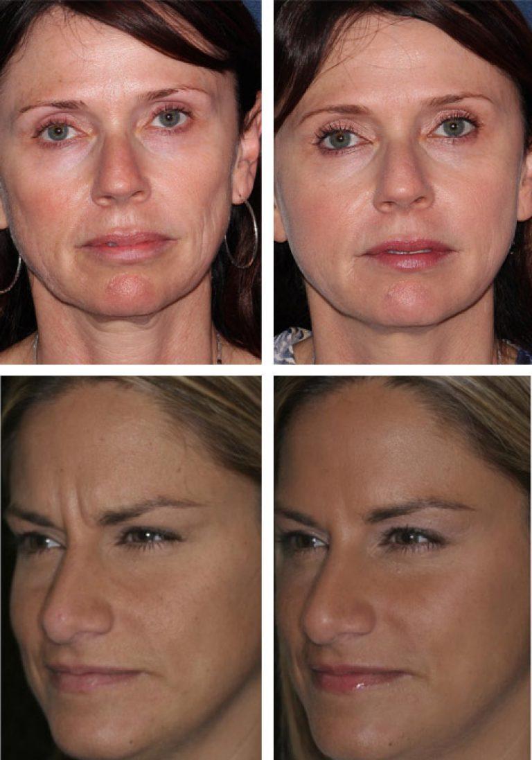 Птоз лица - что это такое, как бороться с обвисанием мягких тканей лица