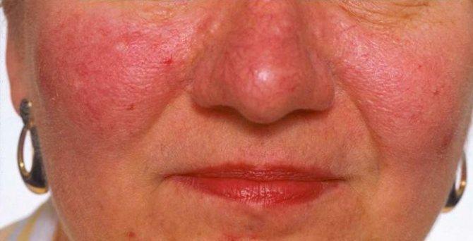 Что такое гиперемия кожи и как ее лечить | знать про все