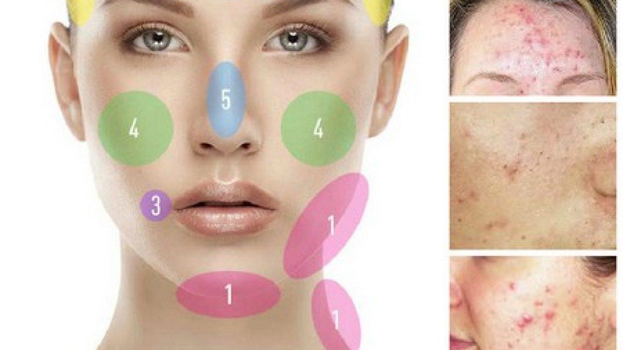 Уход за t-зоной: 5 советов и 6 косметических средств по уходу за кожей лица
