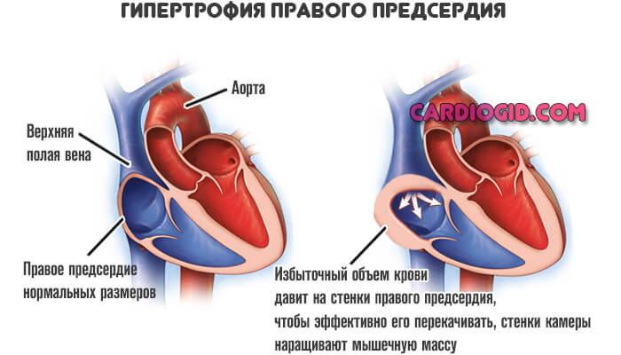 Кардиомегалия:что это, причины, симптомы и лечение
