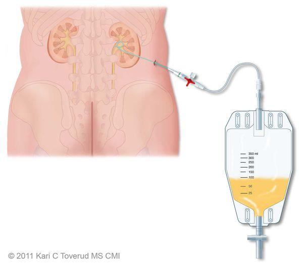 Нефростома в почке: показания, особенности установки, восстановления и ухода после операции